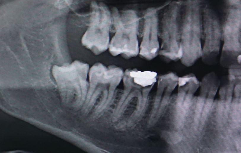 vytiahnutie-zuba-knm