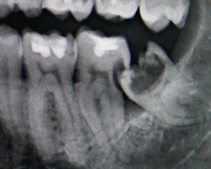 vytrhnutie-zuba-knm
